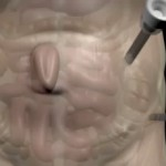 Abdominal Ventral Hernia Repair by Dr. Seun Sowemimo, general surgeon at Prime Surgicare in Monmouth County, NJ