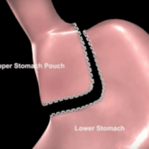 Gastric Bypass by weight loss surgeon, Dr. Seun Sowemimo of Monmouth County, NJ