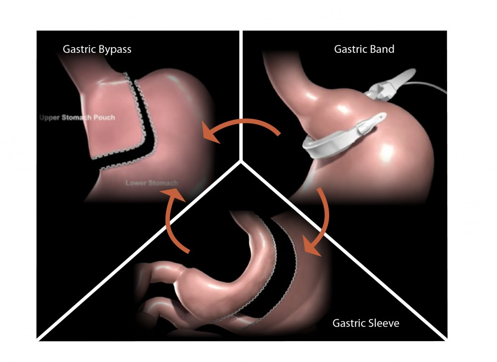 Revision Surgery by Dr. Seun Sowemimo, bariatric surgeon at Prime Surgicare, Monmouth County, New Jersey
