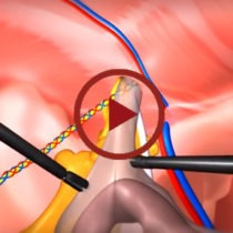 Ventral and Umbilical surgeries by Dr. Seun Sowemimo at Prime Surgicare, Central NJ.