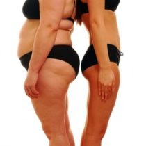 Common Problems After Weight Loss Surgery — by dietician Lori Skurbe, Primesurgicare.com