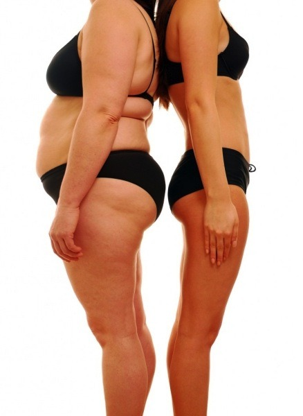 Common Problems After Weight Loss Surgery — by dietician Lori Skurbe