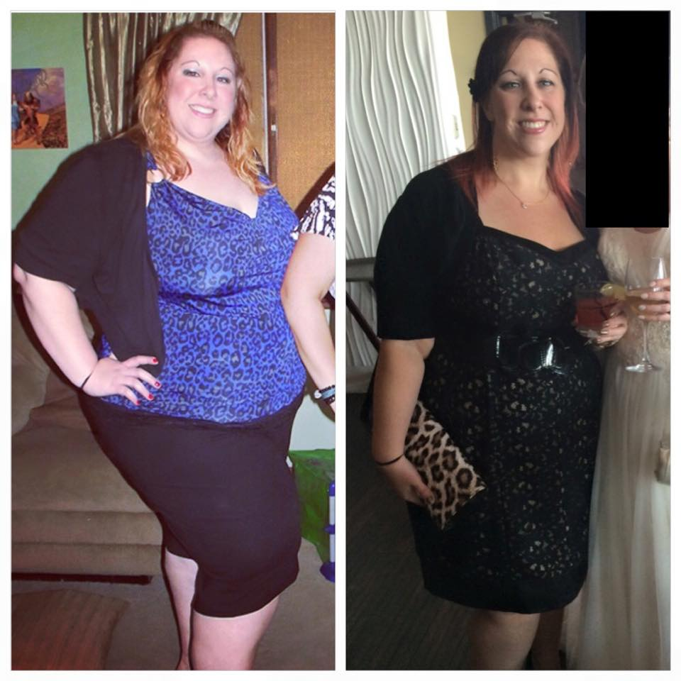 dating weight loss surgery (cnn)-- at 27 years old, i weighed 486 pounds and decided to have gastric bypass surgery i know what you might be thinking: oh, you took the easy way out let me tell you, having weight loss surgery is far from easy it involves a total commitment to a lifestyle change before my surgery nearly.