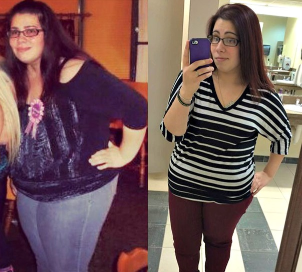 KaraMia Gonzales before and after weight loss surgery with Dr. Seun Sowemimo NJ