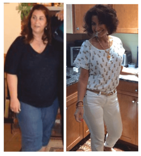 weight loss surgery nj