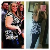 lori-dyas-before-and-after-bariatric-surgery-at-prime-surgicare-nj