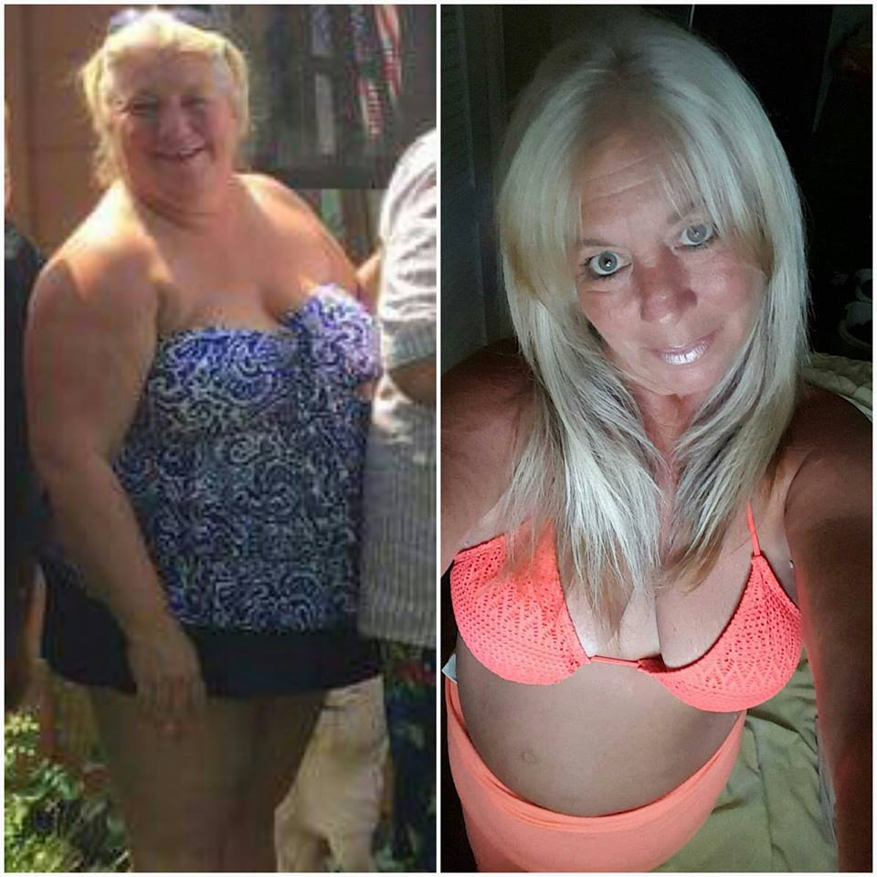 Lori Dyas before and after weight loss surgery at Prime Surgicare, Central NJ.