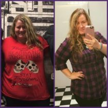 Sabrina Hersom before and after weight loss surgery at Prime Surgicare, Central NJ.
