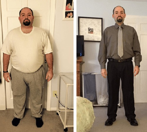 Our Weight Loss Surgery Patients Share Their Tips For Bariatric