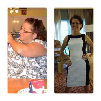 Four Years After Gastric Bypass Polly Keeps The Weight Off Prime