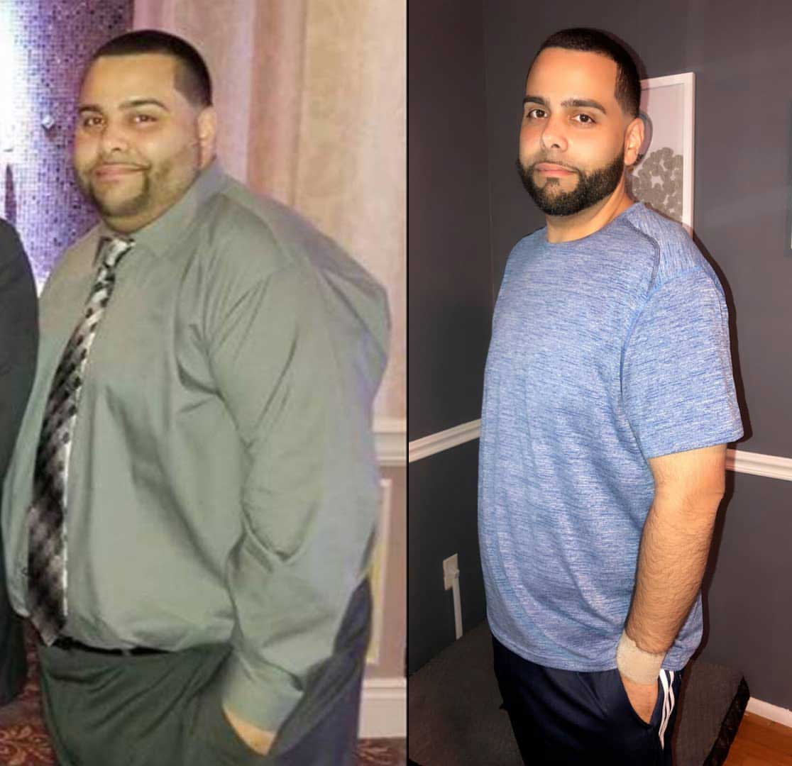 Warehouse Professional Unloads 118 Lbs With Gastric Sleeve Prime